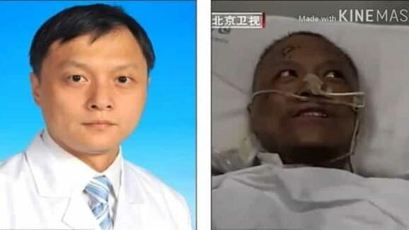 Chinese doctors woke up from a coronavirus coma with black skin